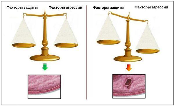 Факторы формирования язвы ДПК (весы Шея)