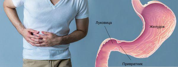 Область болезненных ощущений при язве двенадцатиперстной кишки