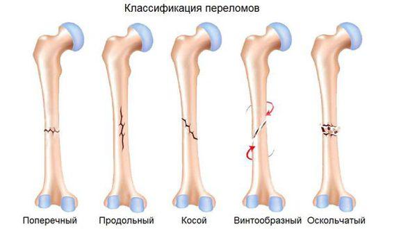 Классификация переломов по форме линии излома