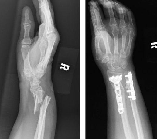 Рентгеновские снимки до и после оперативного лечения закрытого перелома