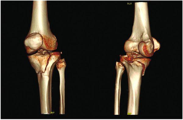 Закрытый перелом (компьютерная томография)