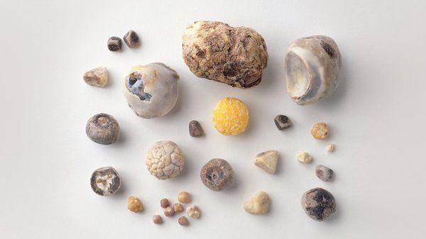 Типы образовавшихся камней