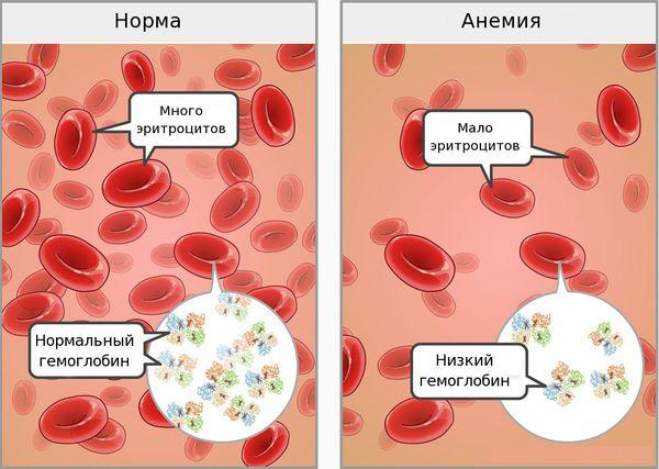 Кровь в норме и при анемии