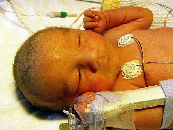 Новорождённый с ядерной желтухой