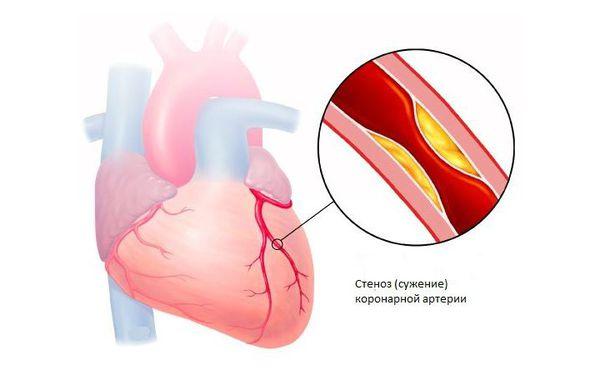 Ишемическая болезнь сердца: сужение коронарной артерии