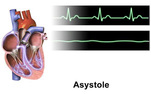 Нормальный сердечный ритм и асистолия