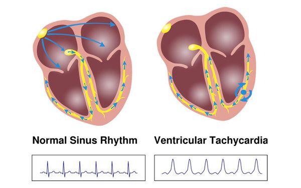 Пробежка пароксизмальной желудочковой тахикардии