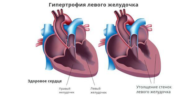 Утолщение стенок левого желудочка