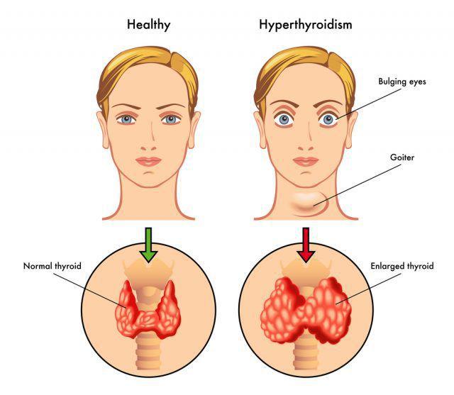 Симптомы, лечение и причины возникновения диффузного токсического зоба