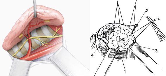 1 — ВГН; 2 — перевязанная верхняя щитовидная артерия; 3 — добавочная доля щитовидной железы; 4 — трахея