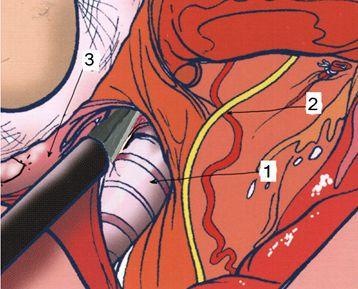 1 — трахея; 2 — ВГН; 3 — щитовидная железа