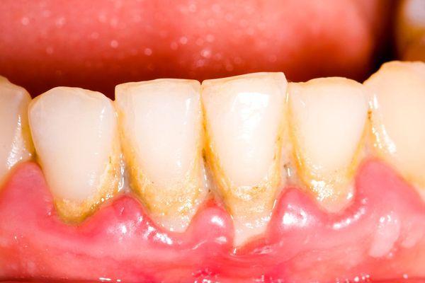 Гингивит осложнение зубного камня